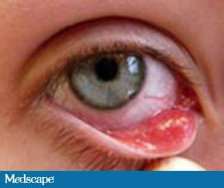 eye infection symptoms eye infections ocular infections