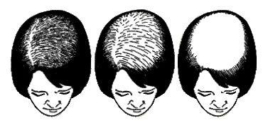 female pattern hair loss classification female pattern baldness new horizons atlanta