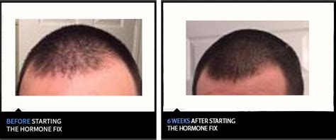 latest news and research on hair loss how a new breakthrough activates a powerful hair growth