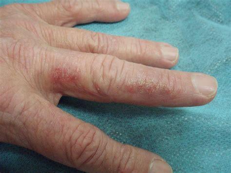 imagenes de alergia al latex alergia o dermatitis de contacto alergia y asma en la