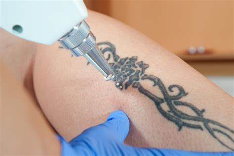 laser tattoo removal jobs miami center for dermatology cosmetic dermatology