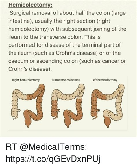 removal of colon section hemicolectomy surgical removal of about half the colon