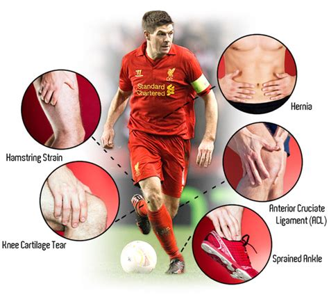 7 Common Style Related Injuries by Top 5 Football Injuries Football Injuries