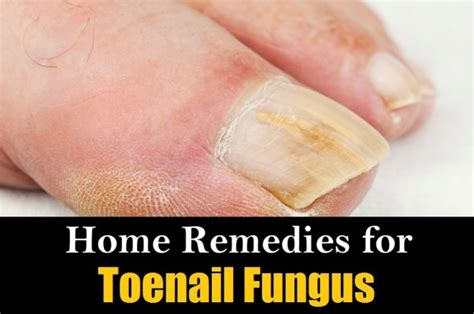 home remedies for scabies treatment naturally