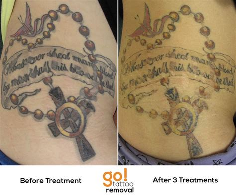 large tattoo removal some great fading on a large a few more laser