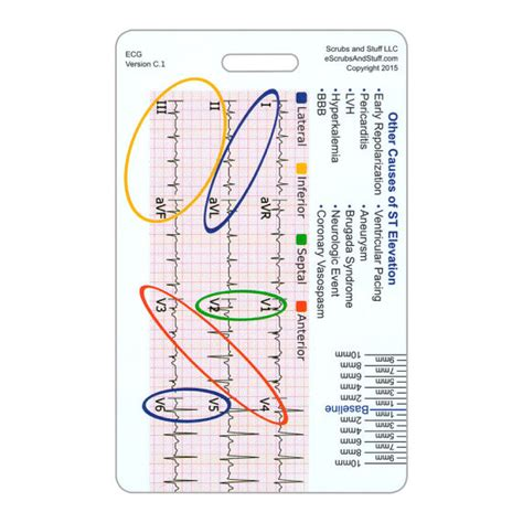 the tincture maker s sheet a pocket reference for tincture makers and herbalists books stemi reference tool vertical badge pocket card for