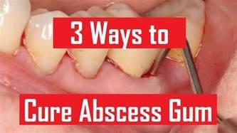 abscess gum www pixshark images galleries with a bite