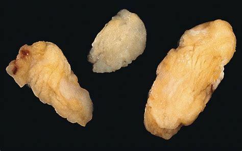 fatty tumor soft tissue tumors pleomorphic lipoma spindle cell lipoma general