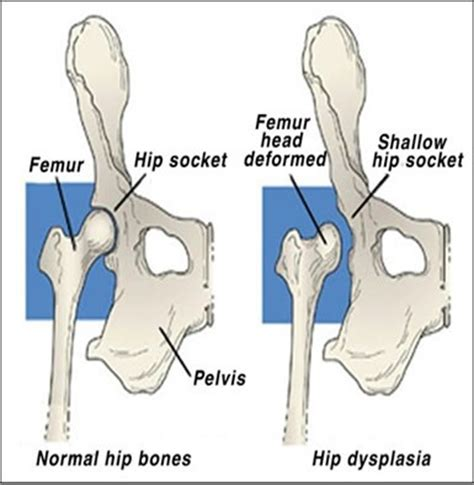 rottweiler age symptoms what to about dogs hip dysplasia ortopedia canina