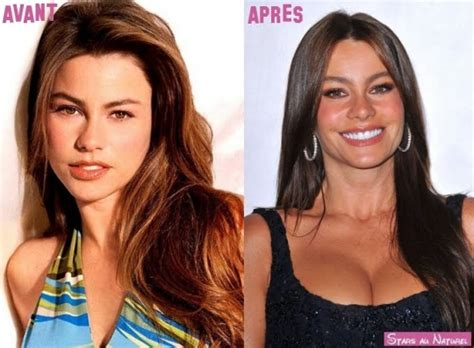 M O B Cosmetic Turner sofia vergara plastic surgery before after breast implants