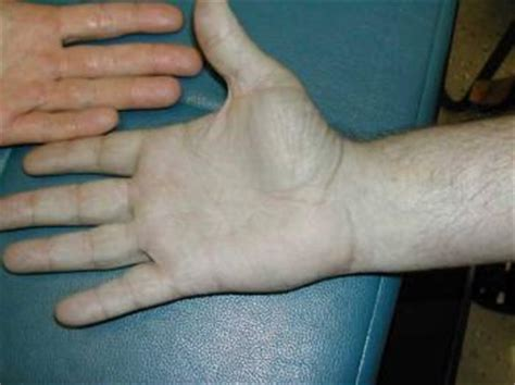 imagenes raras pdf las enfermedades m 225 s raras de la piel
