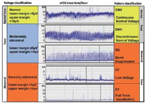 classification pattern in reading cerebralogik dual channel eeg and aeeg mennenmedical