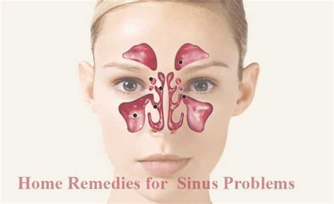 20 simple home remedies for reducing sinus problems home