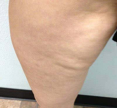 lump on s leg leg lipo revision for lumps photo doctor answers tips