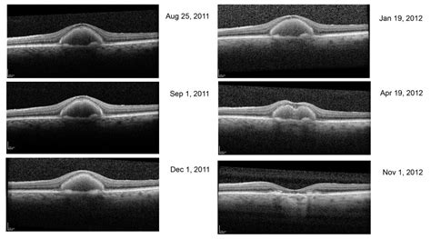 pattern dystrophy vs macular degeneration the electroretinogram and electro oculogram clinical
