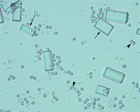 crystals in urine crystals found in urine pictures to pin on pinsdaddy