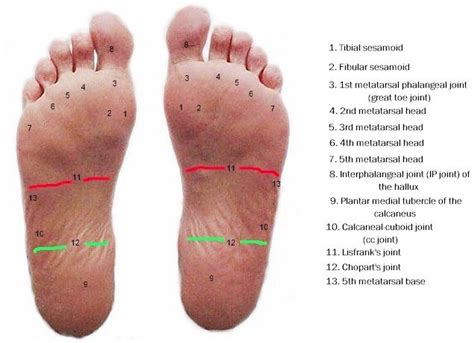 Planter Of Foot by Using Carbon Graphite Plates To Treat Plantar Plate Tears Myfootshop