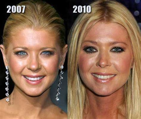 Scary Surgery On Tara Reids 2 by 10 Most Talked About Facelifts Net Worth