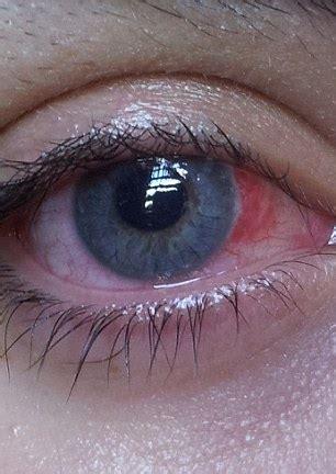 halloween reveller's novelty lenses became glued to her