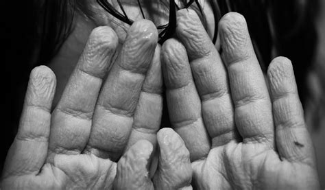 getting a handle on why fingers wrinkle science friday