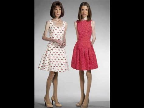 imagenes impactantes de anorexia conoce los 10 casos m 225 s impactantes de anorexia fotos