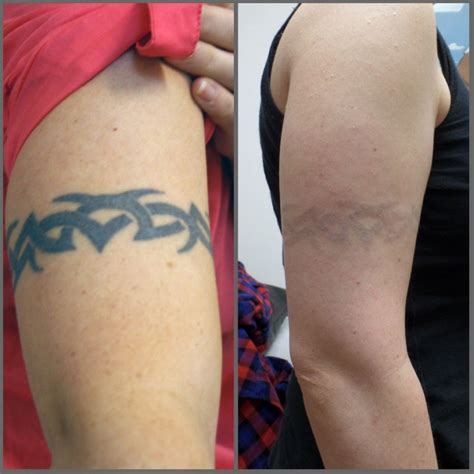 tattoo removal swelling tips for a speedy recovery after laser removal