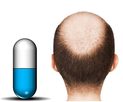 new hair growth discoveries what s the new anti baldness pill in 2014 endhairloss eu