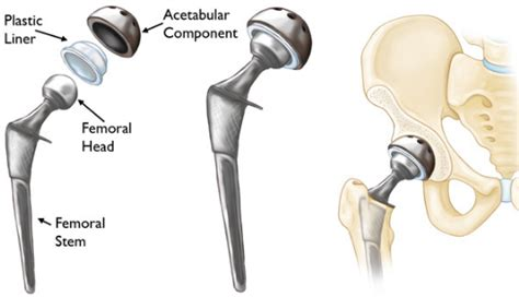 how long does it take to recover after ac section hip replacement surgery recovery how long does it take to