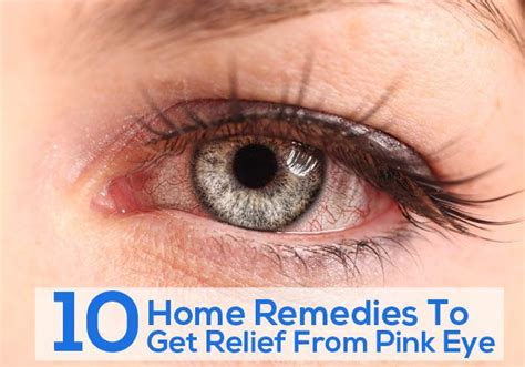top 10 home remedies to get relief from pink eye