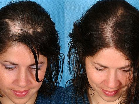 before and after photos alopecia antrogenetic women she was suffering from severe baldness one natural remedy