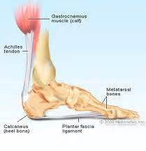 plantar fasciitis diagram what is a heel spur symptoms and treatment pa foot and