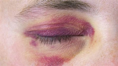 Black Yes black eye dreams meaning interpretation and meaning