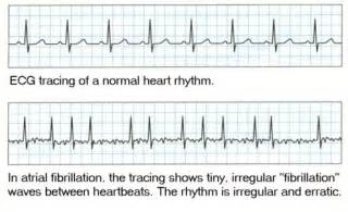 how to get out of afib at home diagnosis and treatment of atrial fibrillation chest