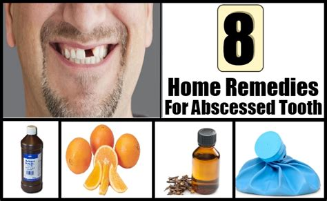 8 home remedies for treating tooth abscess