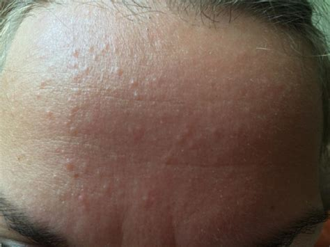 skin colored bumps amazing trick every should all