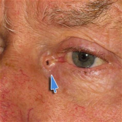 interno occhio giacomo colletti chirurgia maxillo facciale