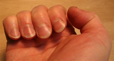 Finger Nails by 301 Moved Permanently