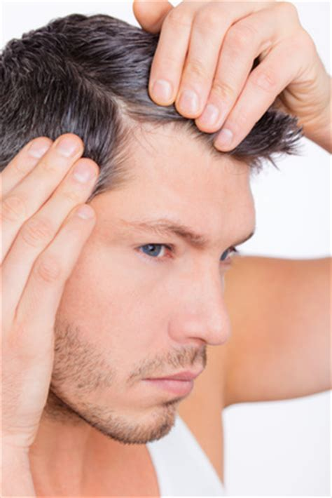 male pattern hair loss solutions the reality of hair loss for women and men kristen