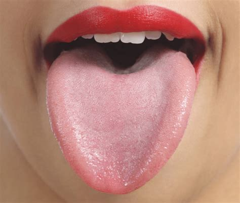 white tongue and black bump white bumps on tongue causes and treatment