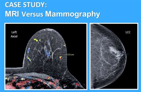 New Mri Testing For Breast Cancer Screening by Not Following Through With Recommended Breast