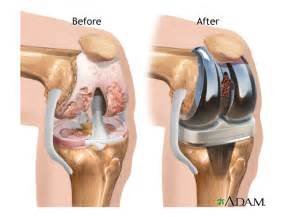 Pain In Back Of Knee After Knee Replacement Surgery by Knee Replacement