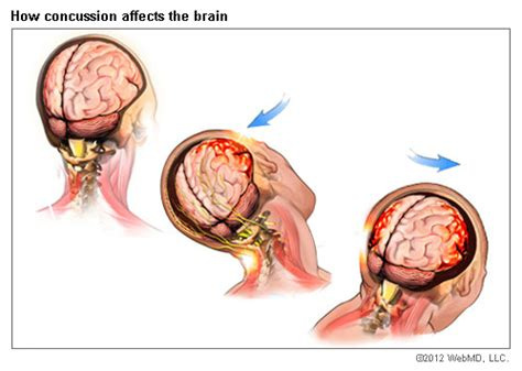 can baby swings cause brain damage concussion traumatic brain injury symptoms causes