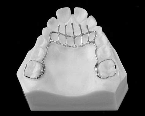 35 best trace ortho lab images on