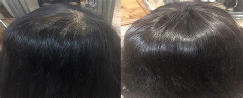 female pattern hair loss uk female pattern baldness new hair technology can now add