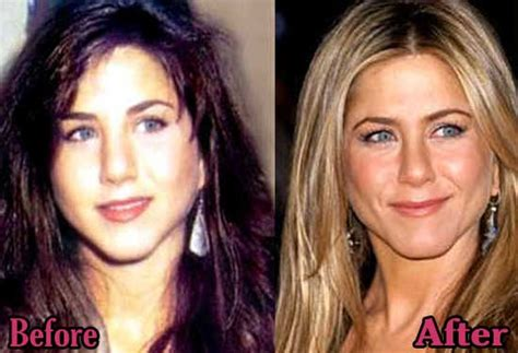 Did Aniston Get Implants by Aniston Breast Implants Before And After Photos