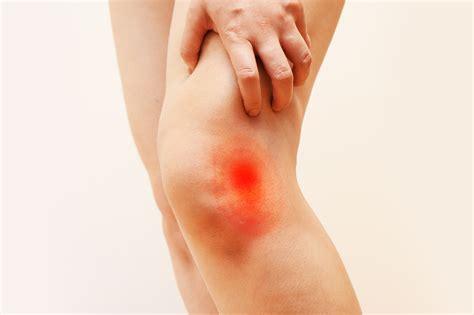 ginocchio dolore laterale interno dolore al ginocchio gonalgia cause sintomi soluzioni