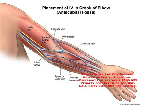 placement of iv in crook of elbow antecubital fossa