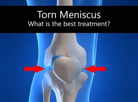 torn acl heal on its own best 25 torn meniscus ideas on