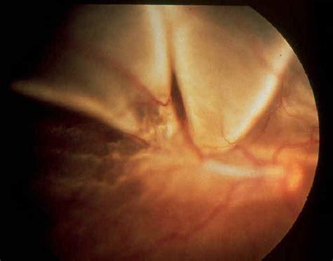 retinal detachment curtain retinal detachment