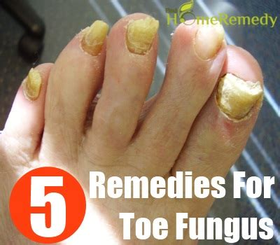 simple home remedies for toe fungus treatments